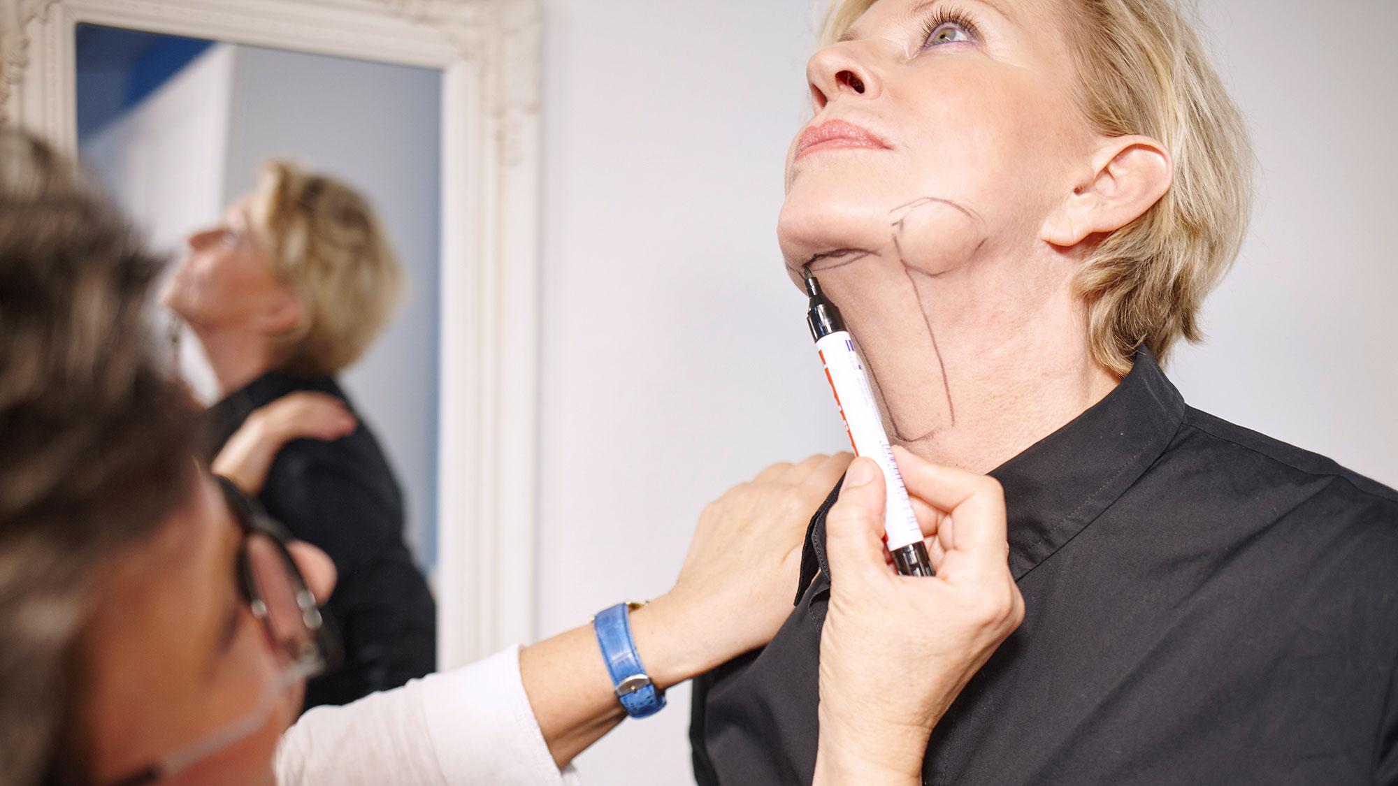 Fettabsaugung im Gesicht und am Hals