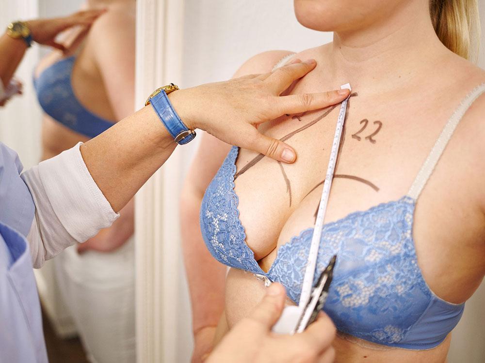 Brust-Ästhetik